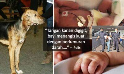 B4y1 7 Tahun Digigit Anjing Hingga Putus Tangan, Owner Didnda RM1000